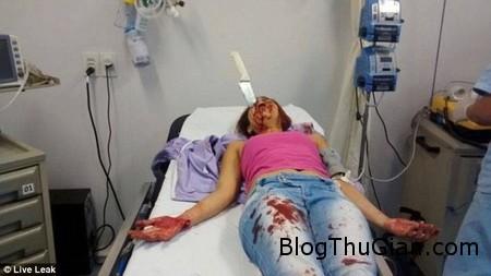Knife on head 1 1b021 Cô gái bị dao găm vào đầu vẫn sống sót