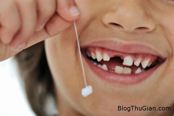 rangsua Để con rụng răng sữa, cha mẹ bị cách ly