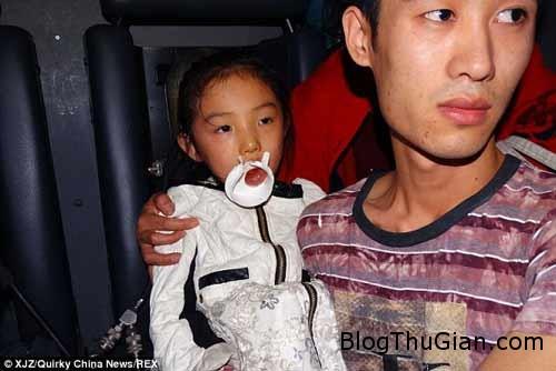 1414493300 1 Tai nạn hi hữu : Bbé gái bị mắc kẹt lưỡi vào nắp cốc nhựa