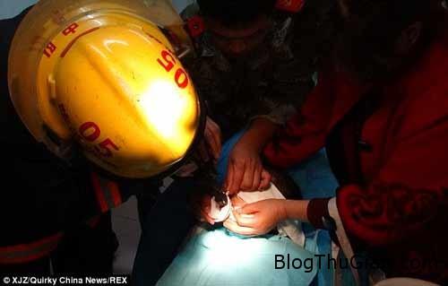 1414493300 3 Tai nạn hi hữu : Bbé gái bị mắc kẹt lưỡi vào nắp cốc nhựa