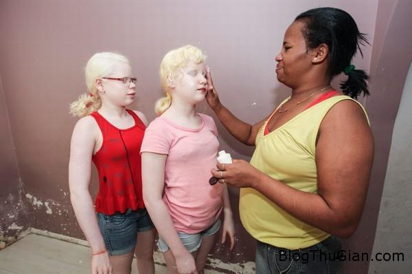 bo me da den de ra 3 con da trang toc vang va mat xanh1 Bà mẹ da đen đẻ 3 đứa con da trắng