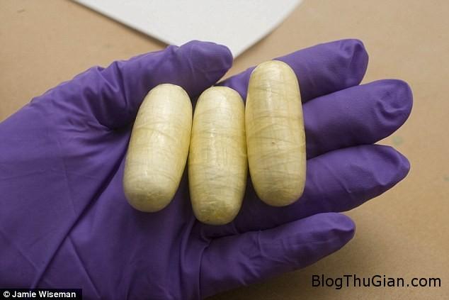 matuy 5dc2b Ép con gái nuốt 105 viên chứa ma túy vào bụng