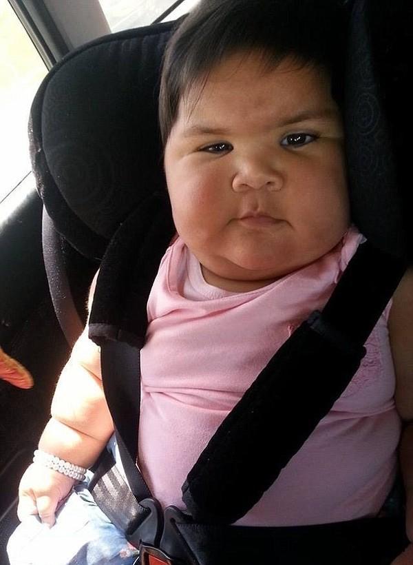mac benh la em be 10 thang lon bang tre 5 tuoi Bé gái 10 tháng tuổi mắc bệnh lạ trong như đứa trẻ 5 tuổi