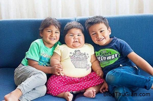 mac benh la em be 10 thang lon bang tre 5 tuoi11 Bé gái 10 tháng tuổi mắc bệnh lạ trong như đứa trẻ 5 tuổi