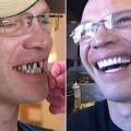 teeth-3935-1426069975