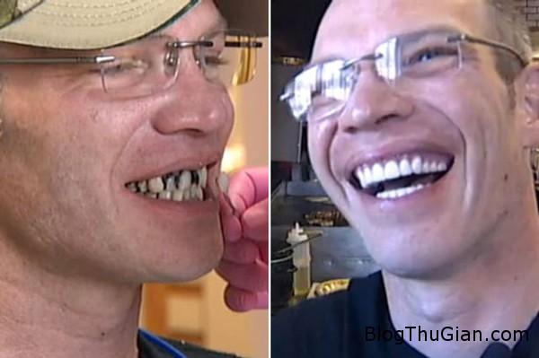 teeth 3935 1426069975 Bồi bàn được khách boa hơn 25.000 USD để đi sửa răng