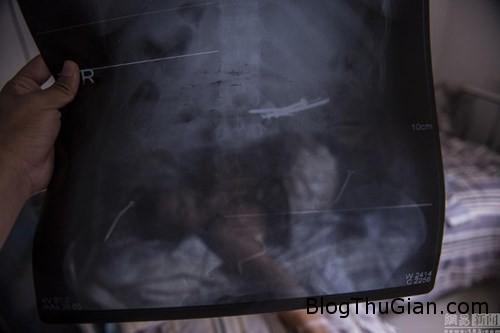 1438930548 1438910985 chuyen la 1  Một phụ nữ nuốt gần 1kg móng tay vào bụng
