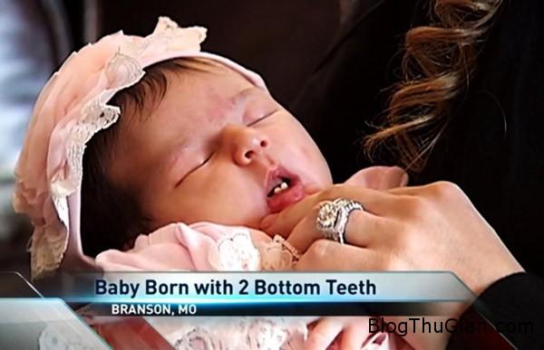 baby 8251 1420775821 Em bé vừa sinh ra đã mọc răng