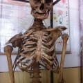 skeleton-2409-1414213576