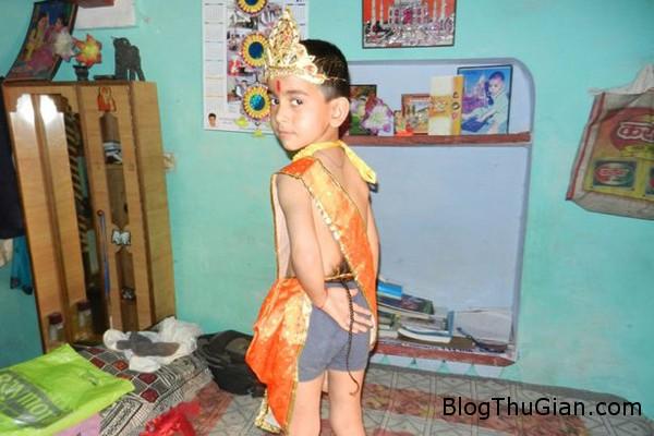 Amar Singh 3415268 4929 1397619847 Bé trai được tôn sùng như thần thánh vì mọc đuôi sau lưng