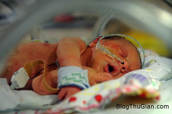 Baby Sienna 3396155 9415 1397205596 Em bé được sinh ra chỉ với nửa quả tim