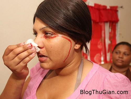 cry blood2 634x540 9870 1386561926 Thiếu nữ khóc ra máu