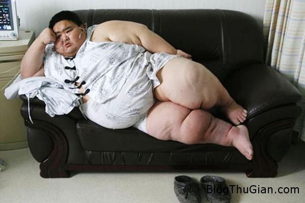 fat2 8204 1426065504 Người đàn ông 220kg giảm thành công 75 kg