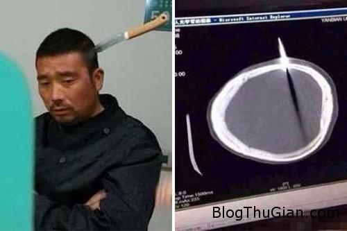 man 6143 1383117306 Bị dao đâm xuyên qua hộp sọ vẫn tự đi đến bệnh viện