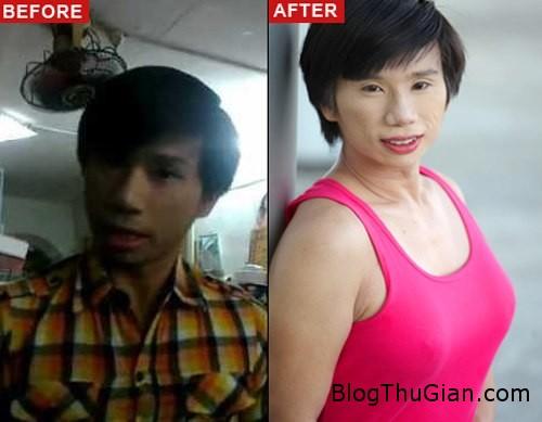 breast 641698 1369209699 600x0 Chàng ca sĩ người Singapore quyết định đi nâng ngực sau khi tỏ tình thất bại