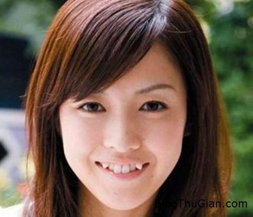 tooth 472758 1368306253 600x0 Phụ nữ Nhật chuộng mốt trồng răng nanh