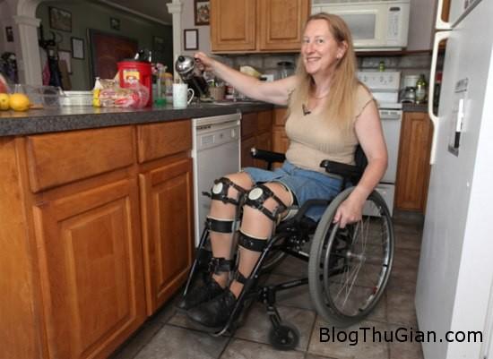 woman1 573164 1374032835 600x0 Phẫu thuật để được tàn phế hai chân