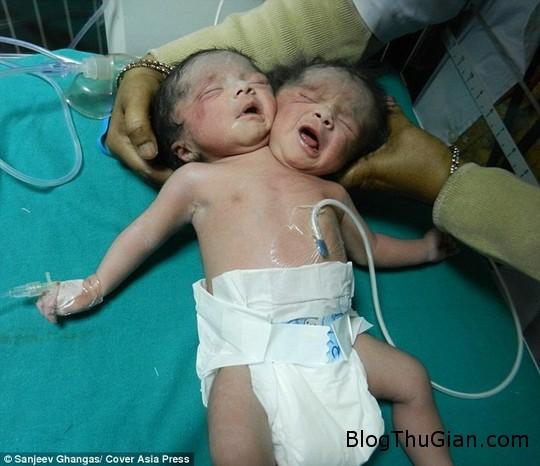 1447415739 nguoi dan do xo den benh vien xem be gai 2 dau Bé gái 2 đầu vừa chào đợi bằng phương pháp sinh mổ