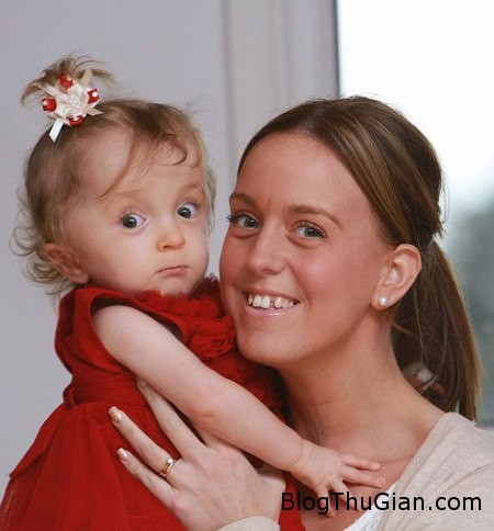 baby 960262 1368257077 600x0 Sức sống mãnh liệt của cô bé xương thủy tinh