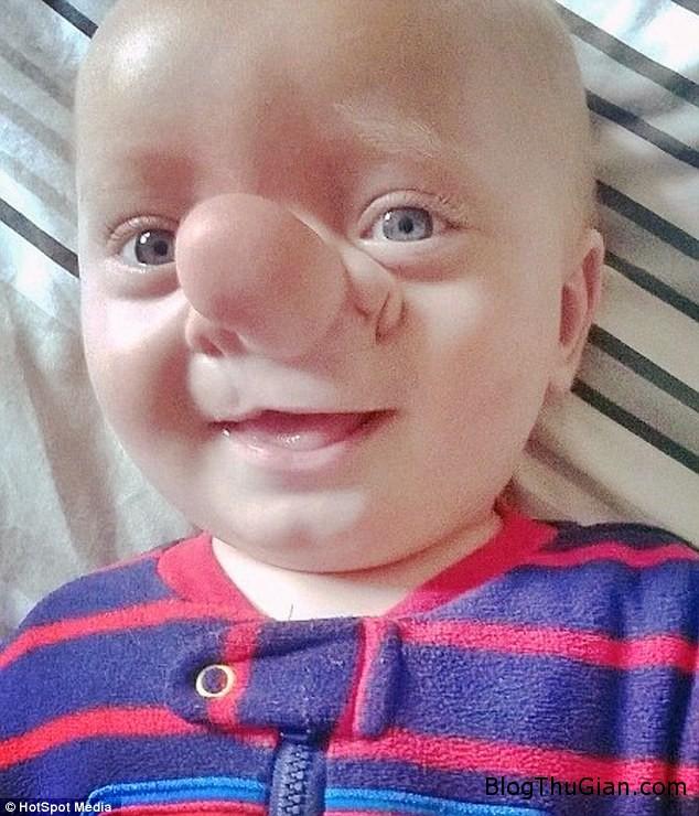 em be co nao moc o mui Cậu bé dị tật có não mọc trên mũi