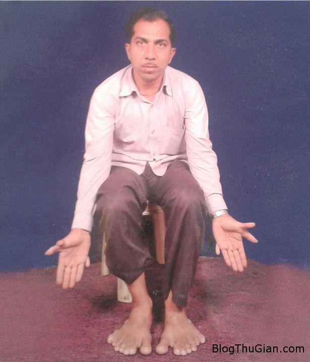 1453963898 1453954004 df Người đàn ông ở Ấn Độ có đến 28 ngón tay và chân