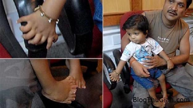 cau be co 34 ngon tay chan Cậu bé có tổng cộng 34 ngón tay, chân ở Ấn Độ