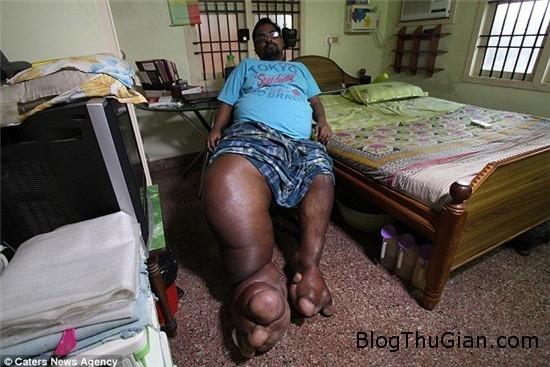 chang trai co chan nang bang mot chu voi con 1 Người đàn ông mắc bệnh lạ với chiếc chân voi