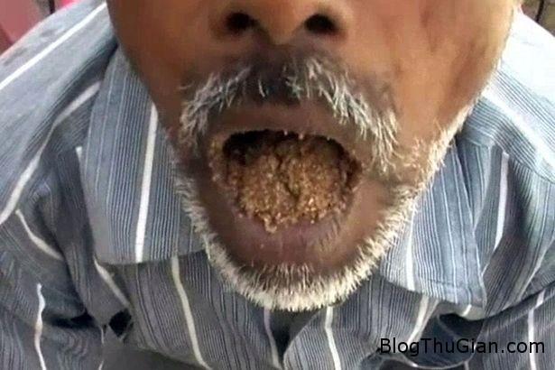 chuyen la co that an cat da 1  71744 zoom Kỳ lạ người đàn ông thích ăn sỏi cát suốt 25 năm