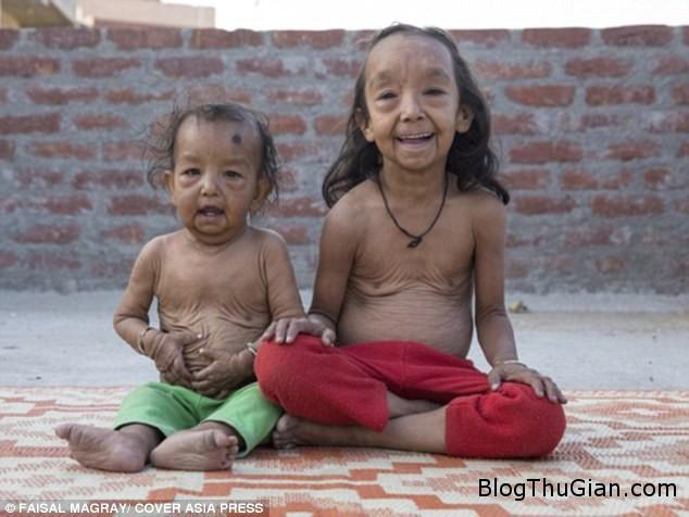 hai chi em mac benh nguoi gia cuc hiem 3702382f27 Hai cô bé người Ấn Độ mắc bệnh lạ khiến da nhăn nheo như cụ già