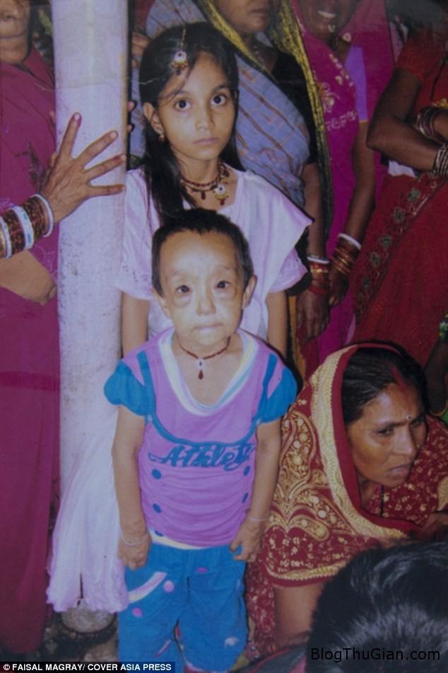 hai chi em mac benh nguoi gia cuc hiem 3f717cce9d Hai cô bé người Ấn Độ mắc bệnh lạ khiến da nhăn nheo như cụ già