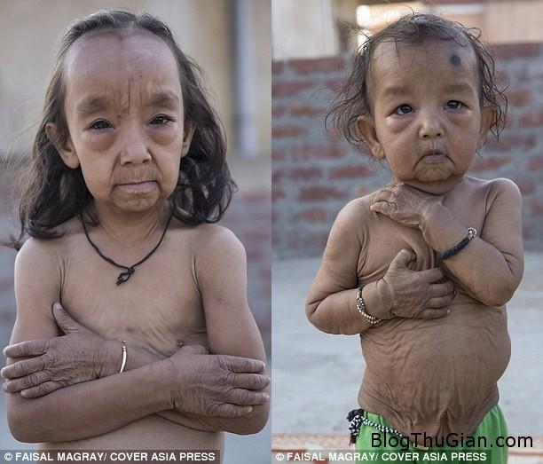 hai chi em mac benh nguoi gia cuc hiem 646efe5d93 Hai cô bé người Ấn Độ mắc bệnh lạ khiến da nhăn nheo như cụ già